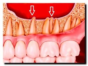 грипп и зубная боль