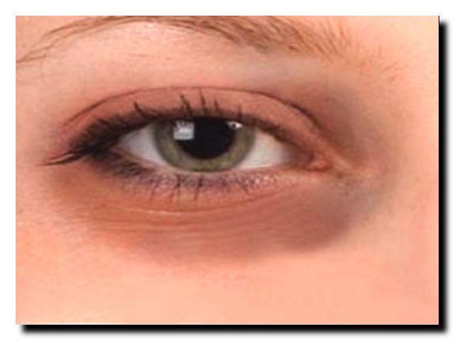 Почему у женщин темные круги вокруг глаз
