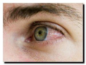 причины красных глаз у взрослого