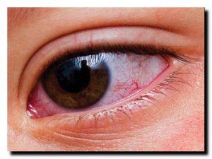 кровавые белки глаз