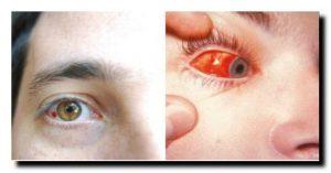 почему глаза краснеют слезятся