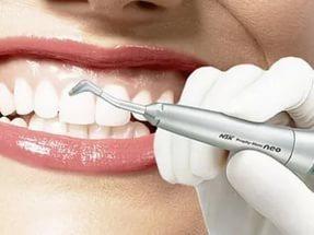 Профессиональная чистка зубов – ваша белоснежная улыбка
