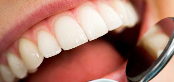 vazhnost-svoevremennosti-lecheniya-zubov