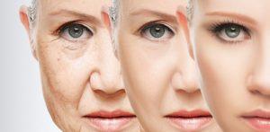 Элос омоложение – и возрастных изменений как не бывало!