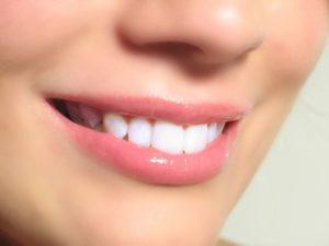 Имплантация при полном отсутствии зубов: методы протезирования