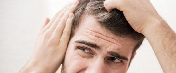 Проблема выпадения волос у мужчин и ее решение