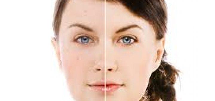 Фотоомоложение лица - насколько эта процедура эффективна