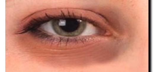 почему вокруг глаз темные круги у женщин